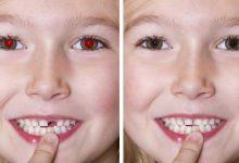 رفع قرمزی چشم
